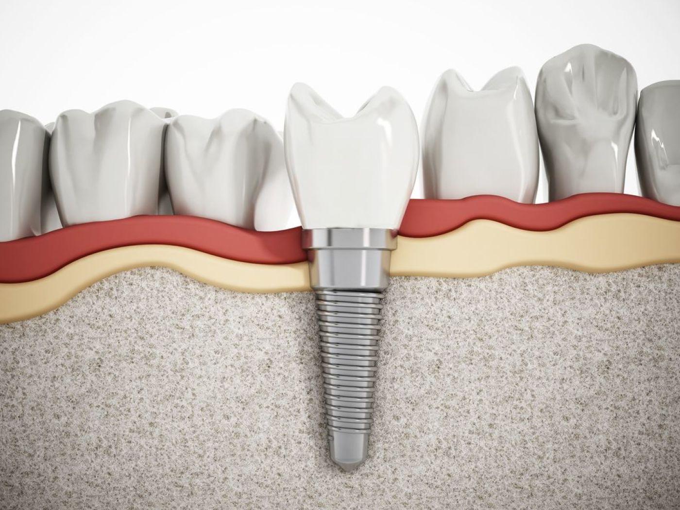 Centre médical dentaire : quel est son avantage ?